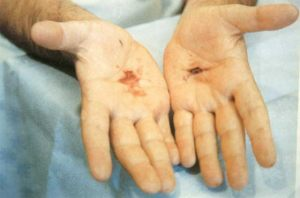2 de Setiembre 1989 Giorgio con los estigmas en las palmas de las manos.