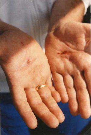 3 de Setiembre 1989 La estigmatización se completa,las heridas aparecen en el dorso de las manos.