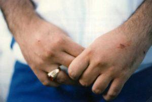 3 de Setiembre 1989 Detalle de la estigmatización en el dorso de las manos.