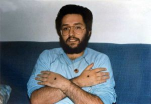 Octubre 1989 Los estigmas en el dorso de las manos un mes después de su aparición.