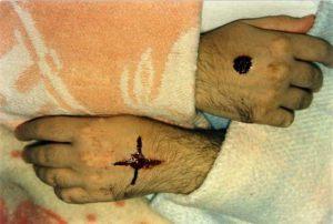 Italia - Porto S.Elpidio 7 de febrero 1990 Durante una sangración se forma una cruz en la mano izquierda.