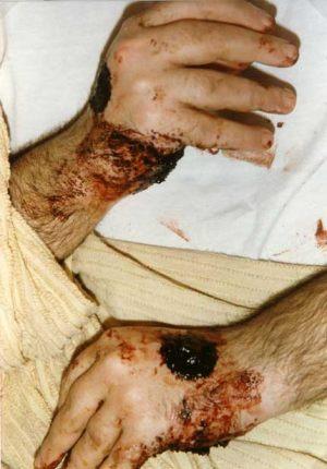 Italia - Porto S.Elpidio 1990 Durante la cotidiana sangración de los estigmas