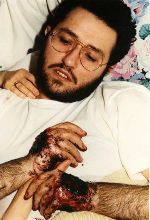 Italia - Porto S.Elpidio Sangración en Marzo 1991.