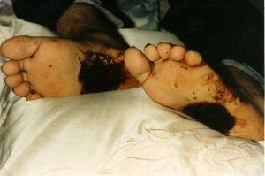 Detalle de los estigmas en los pies.